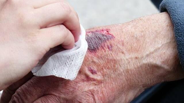 Plaies et cicatrisation : Offre de soins sur le pôle de médecine